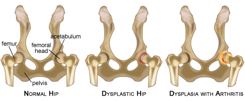 Dog Ramp Co hipdysplasia diagram