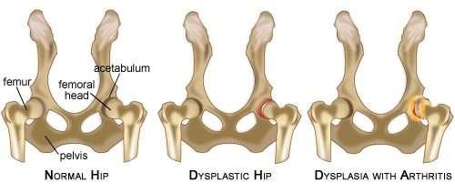 Dog Ramp Co hipdysplasia diagram